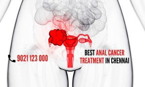 What is Anal Cancer 5 Early Anal Cancer Symptoms