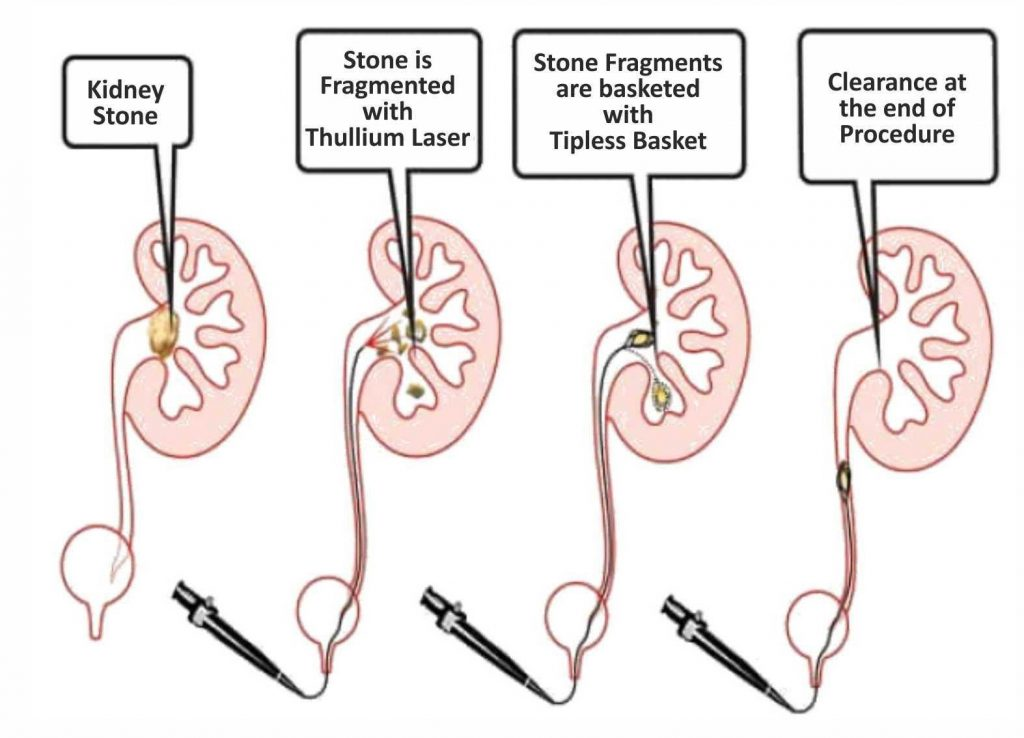 How to prevent Kidney Stones by Dr Griffin M (3)