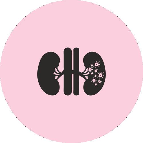 Kidney Cancer - best cancer treatment in chennai - best cancer Care in chennai - best cancer hospital in chennai