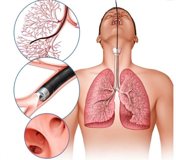 Lung Cancer has an 88% Survival Rate when caught Early and Treated 23