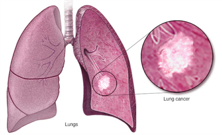 Lung Cancer has an 88% Survival Rate when caught Early and Treated